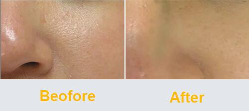 Skin Refinement