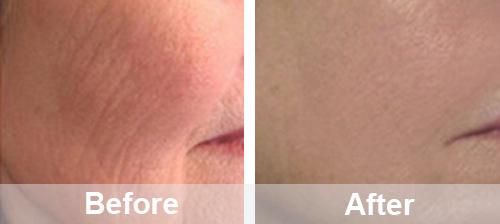 Wrinkle Removal Case