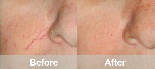 Facial Spider Veins Removal