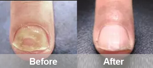 Nails Fungus Treatment