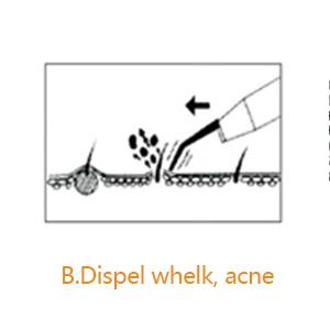 Dispel whelk, acne