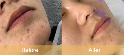 Diminish acne scars