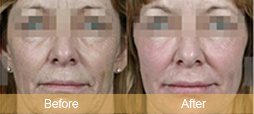 Eyes anti-aging