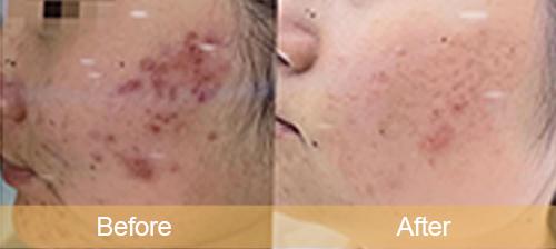 Repair acne scars