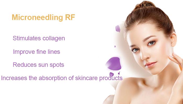 RF Microneedling Treatment