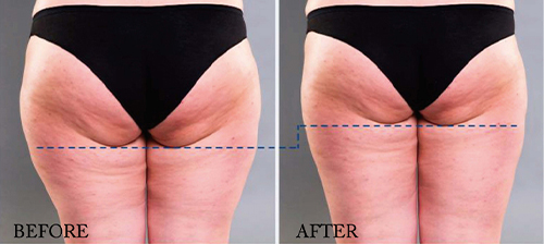 ems treatment before and after for buttocks