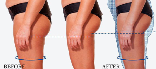ems treatment before and after for thighs