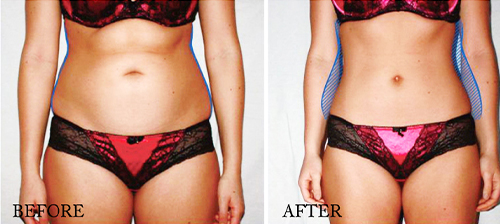 ems treatment before and after for waist