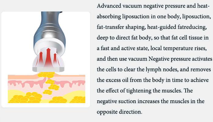 vacuum negative pressure