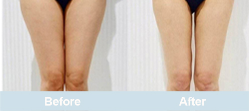 laser lipolysis before and after inner and outer thighs
