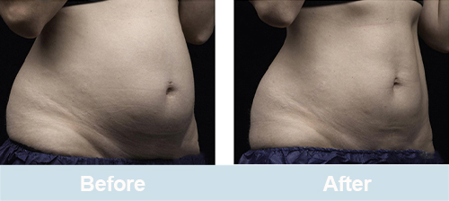 laser lipolysis before and after picture
