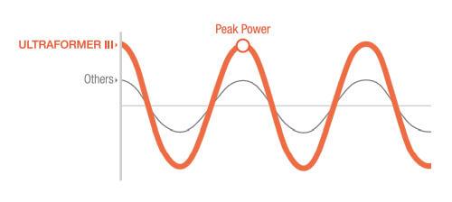 Dual engine enables high peak power & less pain