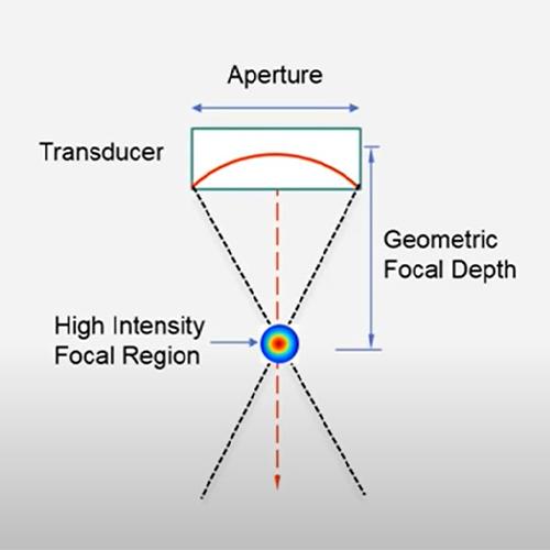 MMFU(Macro & Micro Focused Ultrasound) Technology