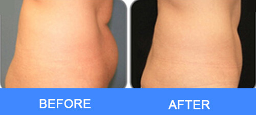 Waist Fat Removal
