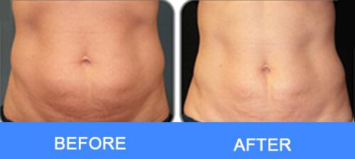Abdomen Fat Removal