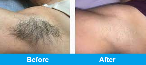 ipl hair removal before after