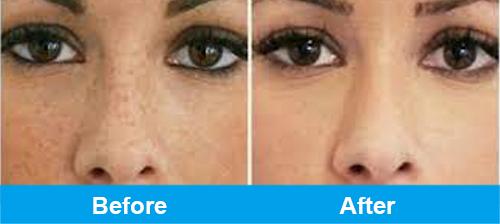 ipl pigmentation treatment