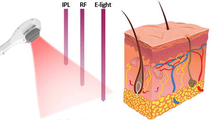 What is ipl hair removal?
