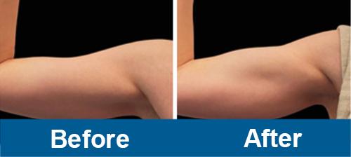 Arms Treatment of Emsculpt