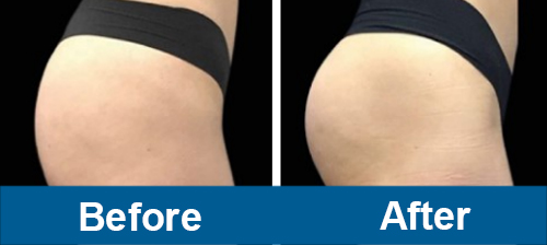 Before and eight weeks after the third and final treatment of emsculpt