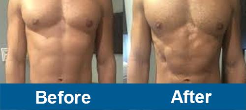 Stomach Treatment