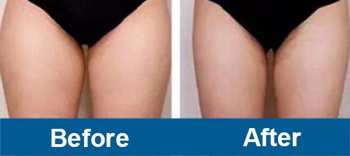 Upper Legs Treatment of Emsculpt