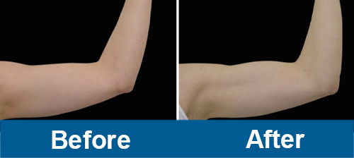 Arms Treatment