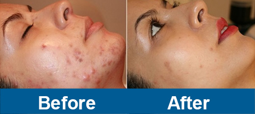 led light therapy before and after