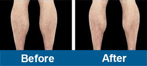 Legs Treatment